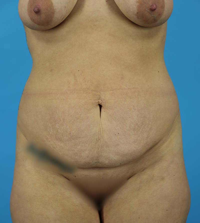 Abdominoplasty Before and After | Dr Evan W Beale