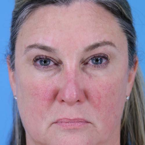 Blepharoplasty Before and After | Dr Evan W Beale
