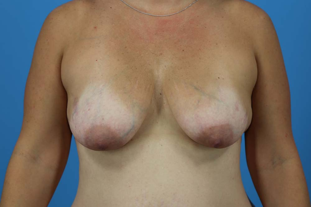 Breast Augmentation With Mastopexy Before and After | Dr Evan W Beale