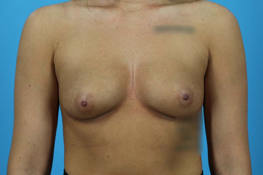 Breast Augmentation Before and After | Dr Evan W Beale