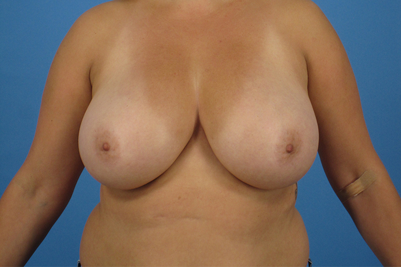 Breast Reduction Before and After | Dr Evan W Beale