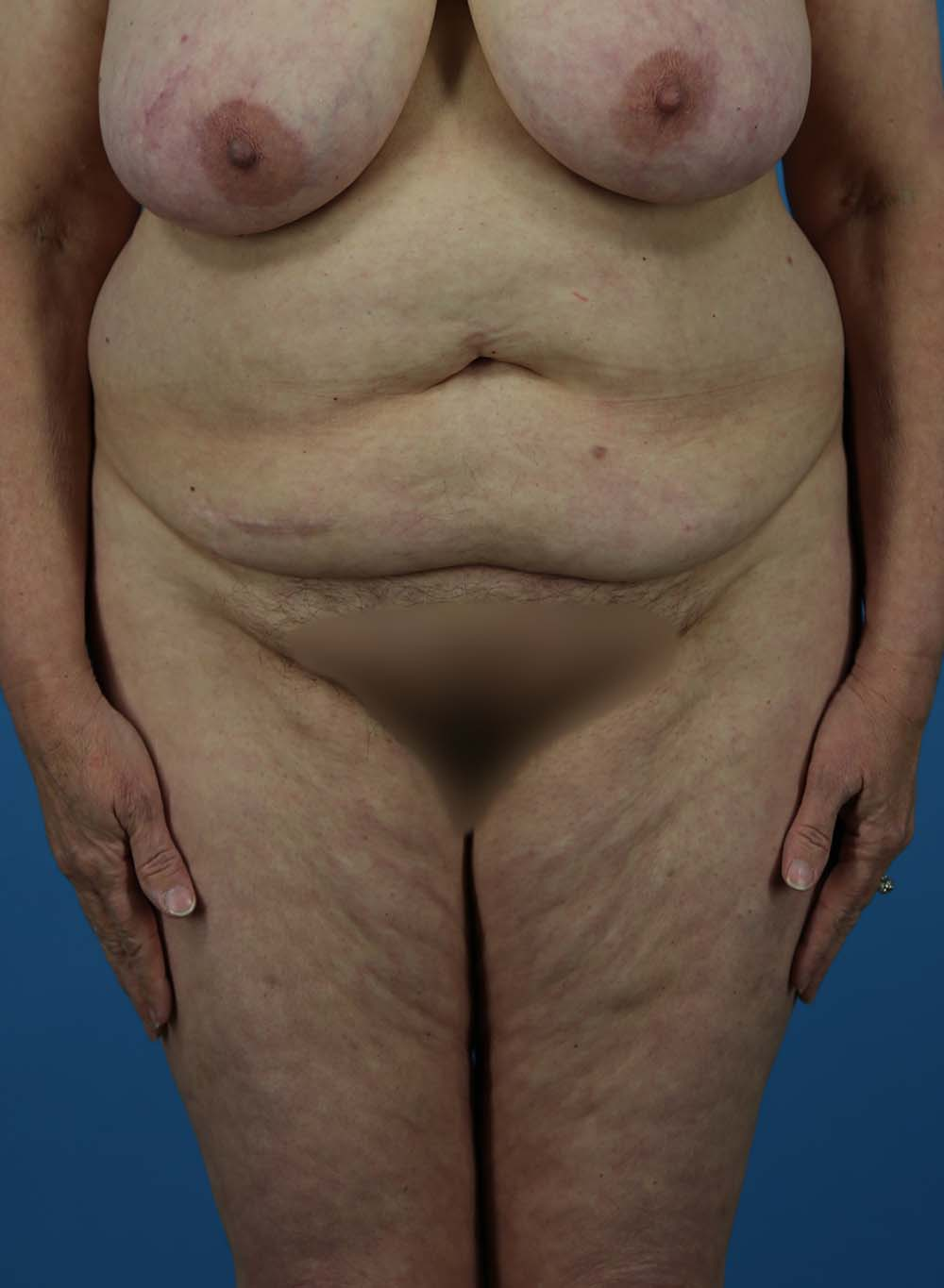 Liposuction Before and After   Dr Evan W Beale