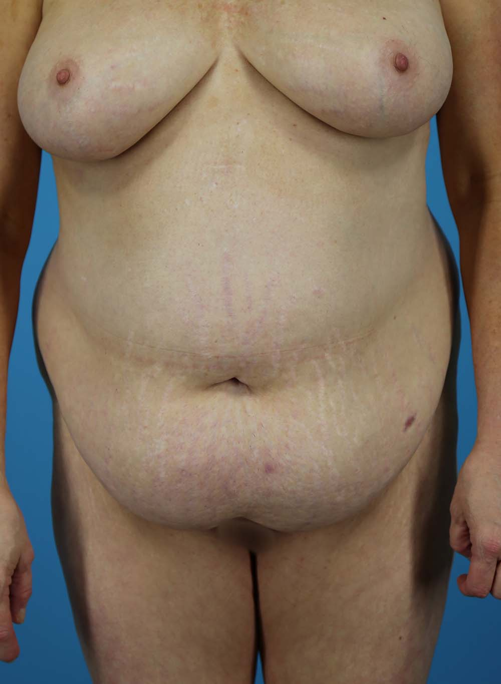 Liposuction Before and After | Dr Evan W Beale