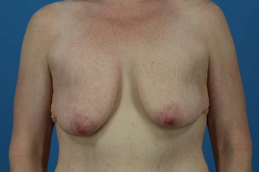 Mastopexy Before and After | Dr Evan W Beale