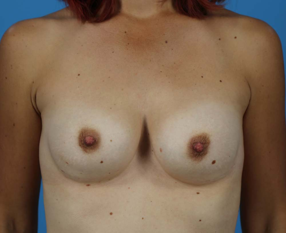 Secondary Breast Surgery Before and After | Dr Evan W Beale